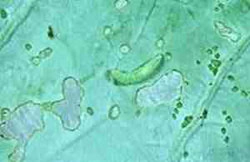 Larvae feeding on leaf